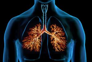 воспаление легких