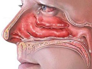 воспаление слизистых оболочек носа