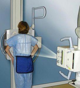 рентгеновское исследование грудной клетки