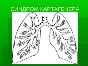 синдроме Картагенера