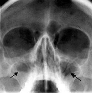 рентген ППН